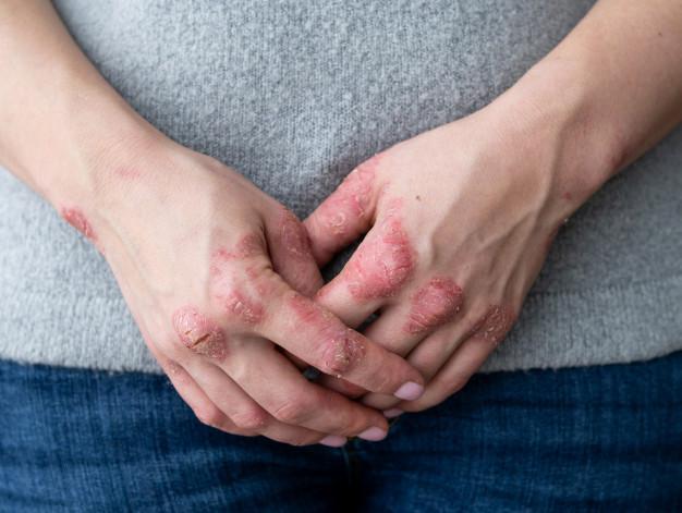 Eczema Types - Diagnosis Symptoms Causes Treatment - Eczema Cure